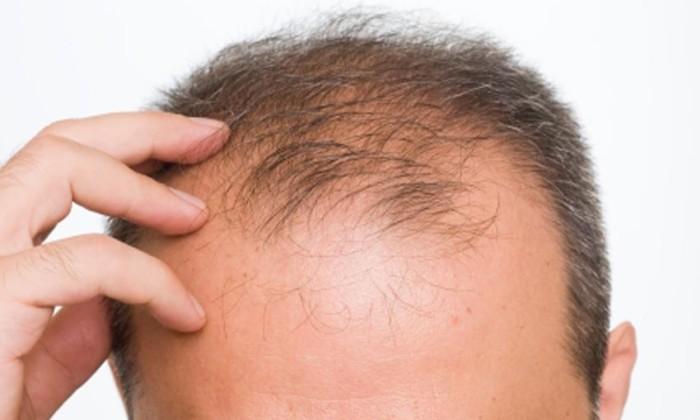 hair-loss-ok