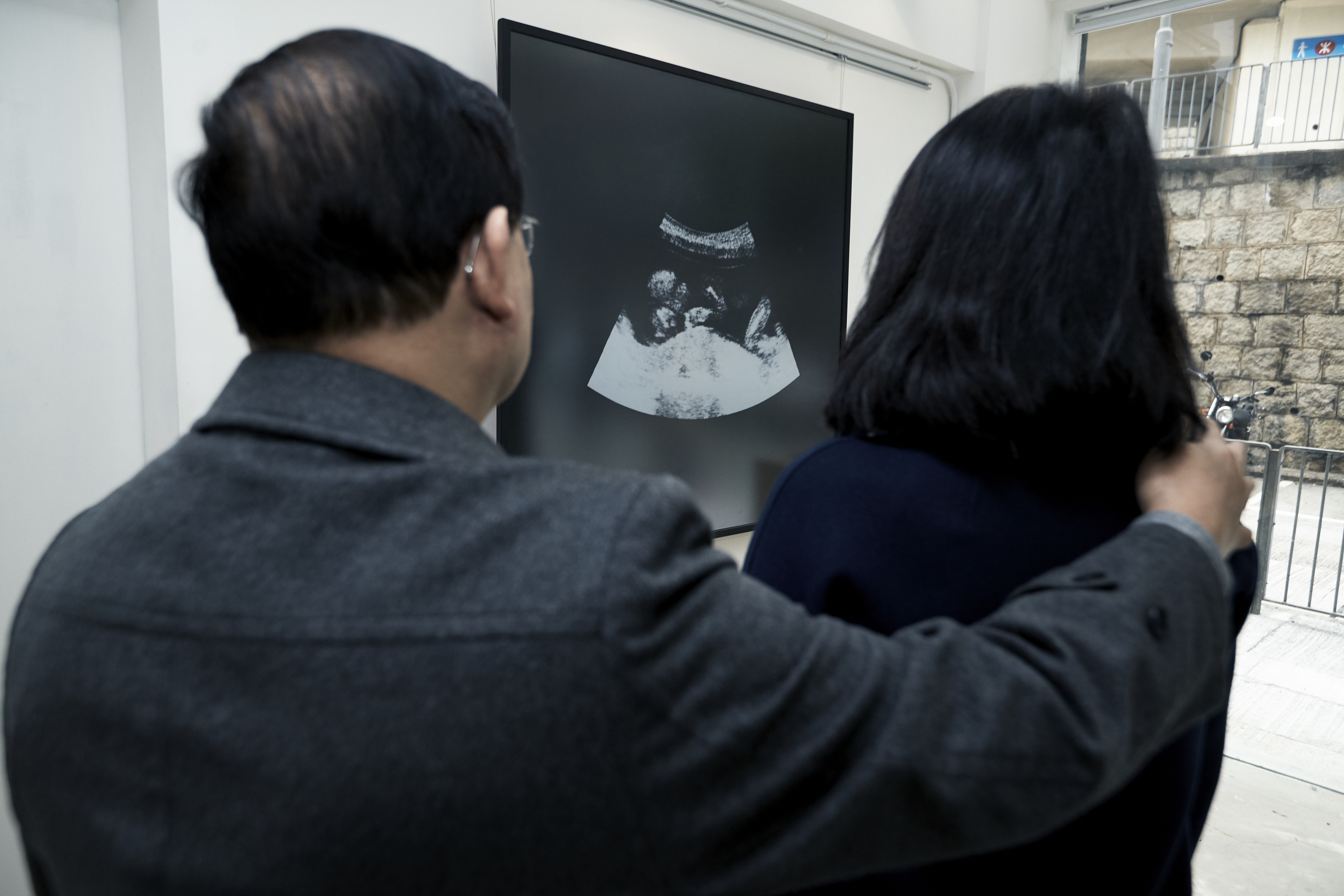 abortion hong kong While a public hospital in hong kong will perform an abortion up to 24 weeks of pregnancy, it may be impossible to get an appointment.